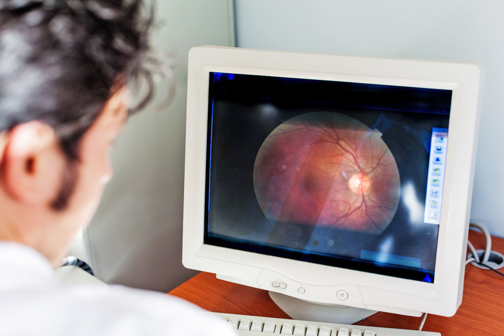 a young ophthalmologist looking at a retina scan in a computer monitor